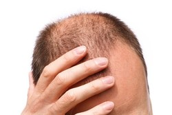 Researchers use stems cells in hair loss treatment