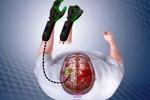 ۲۰ درصد از سکتههای مغزی در سنین جوانی اتفاق میافتد