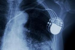 باحثون إيرانيون يصنعون جهازا لاسلكيا لتنظيم ضربات القلب