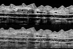 مشاهده سه بعدی بافت بدن/ بیوپسی مجازی می شود