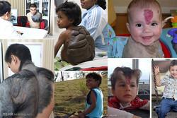 ۱۴بیمار با ناهنجاری مادرزادی تحت عمل جراحی قرار گرفتند