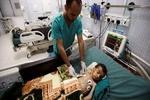 شمار قربانیان دیفتری در یمن به ۳۲ نفر رسید