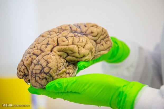 مسابقه «تصویربرداری تشدید مغناطیسی کارکردی مغز» برگزار می شود
