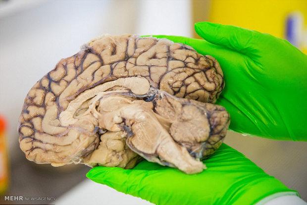 بانک مغز در انگلیس