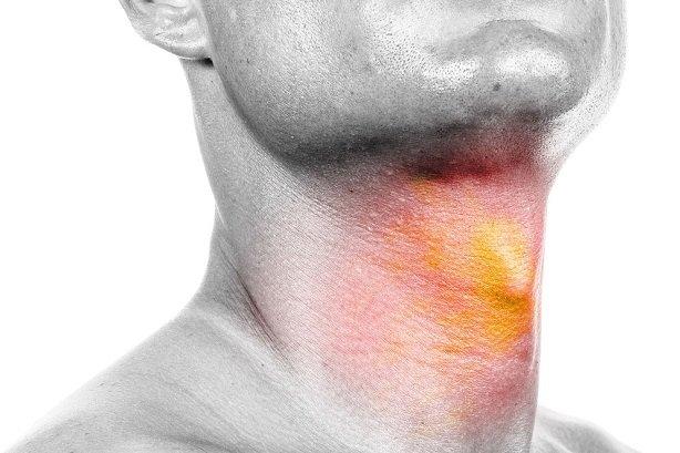 گرفتگی صدا را جدی بگیرید/ ارتباط سیگار و سرطان حنجره