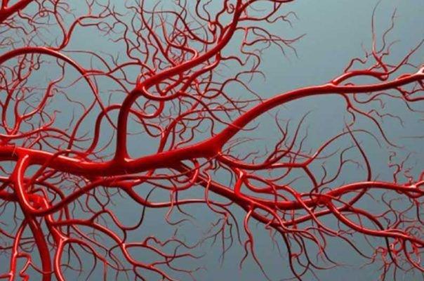 وجود کلسیم در عروق خونی نشانه حمله قلبی است