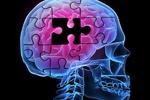 راهاندازی کلینیک اختلالات شناخت و حافظه در سراسر کشور