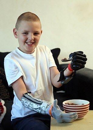 با پسر بیونیک آشنا شوید/ جوانترین فرد جهان با ۲ دست مصنوعی