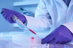 ویروس HPV عامل اصلی بروز سرطان دهانه رحم