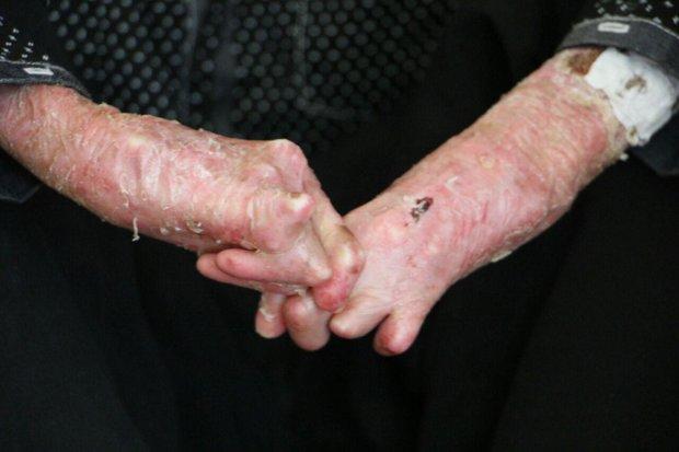 ۶۶ بیمار مبتلا به بیماری پروانه ای در فارس شناسایی شدند