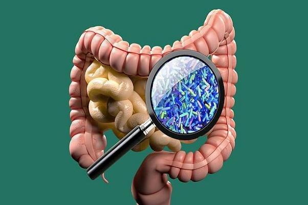 تاثیر رژیم غذایی پرچرب همراه با آنتی بیوتیک در بروز التهاب روده
