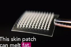 اختراع چسب پوست برای حل مشکل چاقی دور شکم