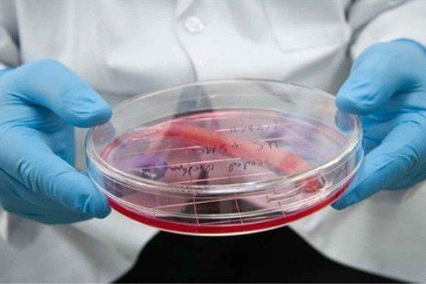 درمان بیماران سکته مغزی با سلول های بنیادی