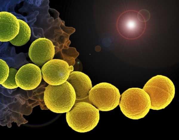 شهرنشینی عامل افزایش ریسک بیماری های ناشی از میکروب های هوا