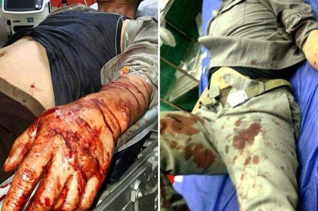 محیط بان رامیانی بر اثر شلیک شکارچی غیرمجاز زخمی شد
