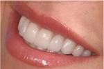 علم دندانپزشکی ترمیمی به سمت درمان علت بیماری می رود