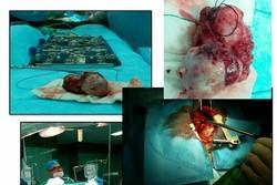 تومور ۱۲ سانتی متری از قلب کودک شیرخوار در زاهدان خارج شد