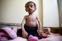رنج گرسنگی در سوریه