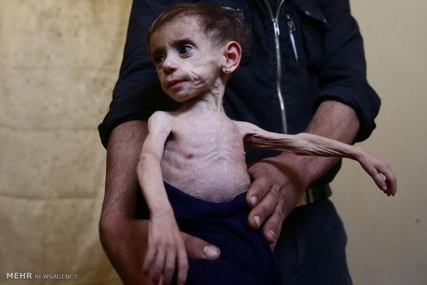 الفقر والمجاعة على خلفية الحرب في سوريا