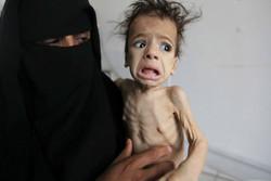أكثر من 8 ملايين يمني على شفا المجاعة بسبب الحصار السعودي