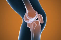 آرتروز ناشی از افزایش سن شایع ترین علت تعویض مفصل زانو