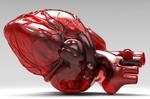 بیمه ها هزینه های قلب مصنوعی را پوشش نمی دهند