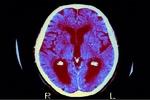 چارهسهریی نهخۆشی ئالزایمر بە دهرمانی شەکرە