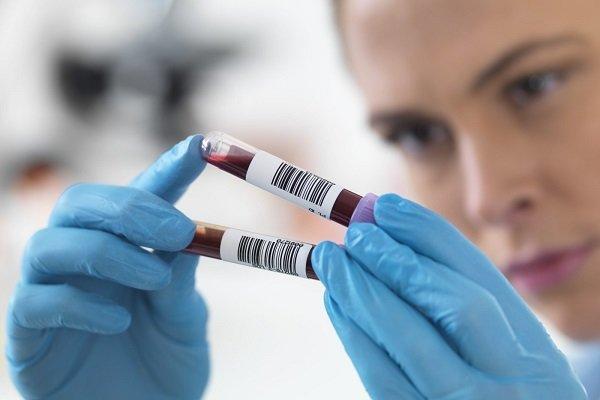دانشمندان یک گام به تکثیر اسپرم انسان نزدیک تر شدند