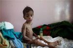 بیش از ۲۲ میلیون یمنی نیازمند کمک هستند