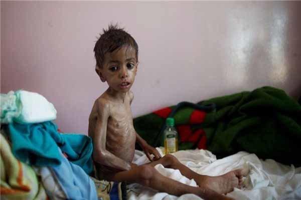 """Yemen'deki """"kolera salgını"""" yağmur sezonunda daha da yoğunlaşacak"""
