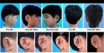 محققان چینی برای 5 کودک گوش ساختند