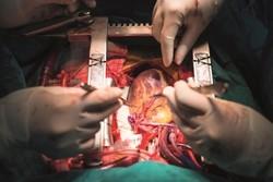 شیوع و بروز ۲۵ درصدی بیماریهای قلبی در ایران