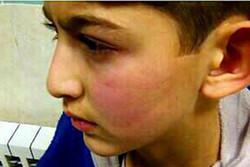 تنبیه بدنی دانشآموز اردبیلی/شکایت اولیا در دستور بررسی قرار گرفت