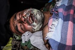 مصدومان چهارشنبه سوری سالهای گذشته