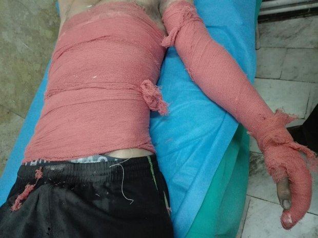 ۳۳ نفر در استان کرمانشاه مصدوم شدند/ مصدومیت ۵ زن