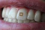 حسگر قابل نصب بر دندان عادات غذایی شما را بررسی می کند