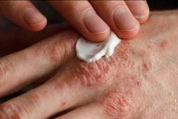 ۱۰ درصد جامعه کارگری مبتلا به اگزمای پوستی است