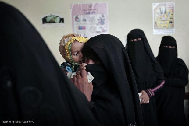 المجاعة في اليمن