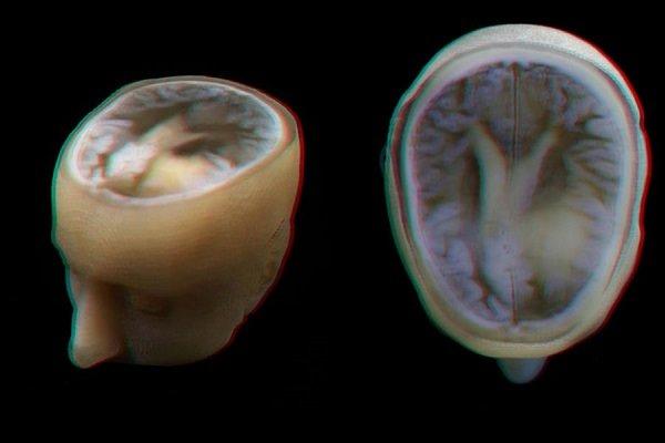 مدل سه بعدی دقیق مغز انسان تهیه شد