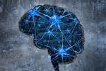 آلزایمر مغز انسان