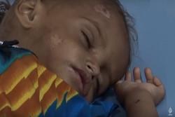 وضعیت انسانی در الحدیده یمن فاجعه بار است
