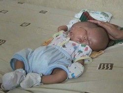 انڈونیشیا میں دو چہروں والے بچے کی پیدائش