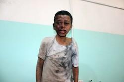 حمله توپخانه ای ائتلاف سعودی به صعده یمن/ ۷ تن کشته و زخمی شدند
