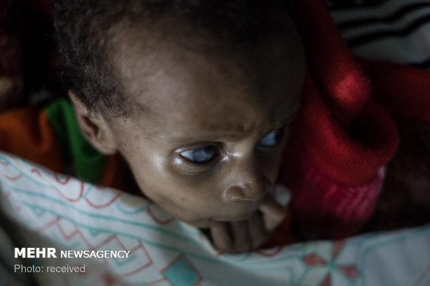 بحران گرسنگی در چاد