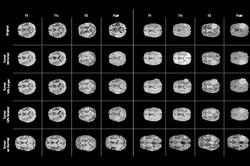 شناسایی دقیق و ساده تومورها در ام آر آی ممکن شد