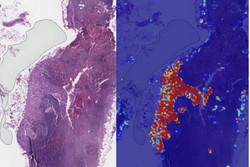 تشخیص سرطان سینه با دقت ۹۹ درصدی هوش مصنوعی