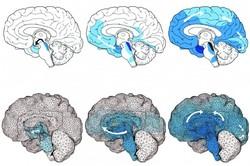 شبیه سازی ابتلا به آلزایمر با مدل رایانه ای