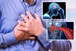 علائم پیش از سکته قلبی و مغزی را جدی بگیریم/ کد ۲۴۷ و ۷۲۴ چیست؟