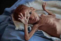 المجاعة في اليمن / صور