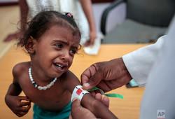 موافقت ائتلاف سعودی با خروج زخمیهای یمنی